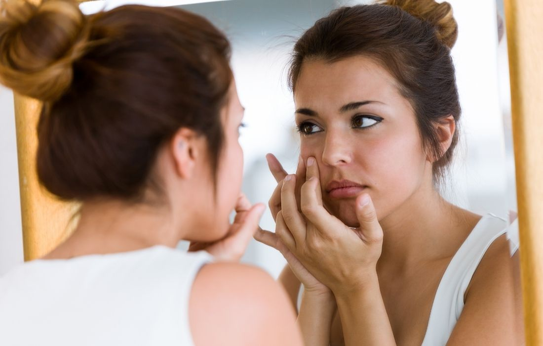 How to Prevent Acne Caused by Workouts